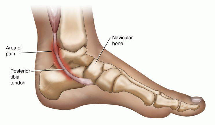 Foot and Ankle Injuries - Dance Archives - Perfect Form ...
