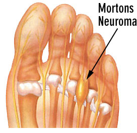 What Is A Mortons Neuroma? - Perfect Form Physiotherapy